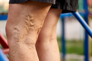 Painful varicose and spider veins on womans legs, who is active, self-helping herself. Healthcare