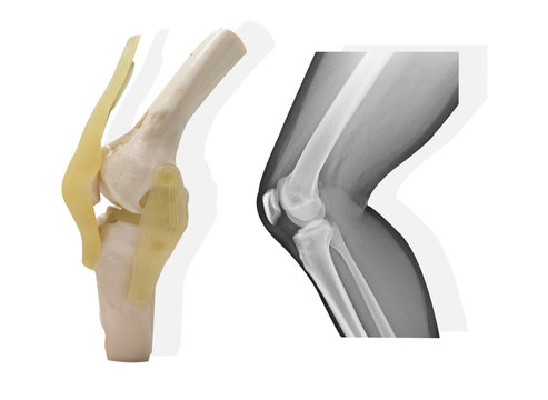 Artificial human knee joint model with Medical x-ray knee normal joint on white background,Medicai concept.