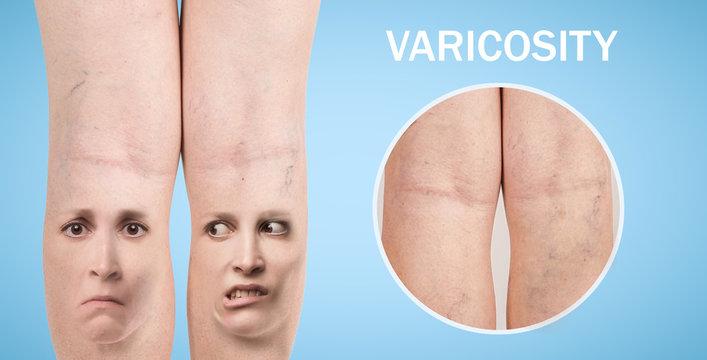 Legs with varicose veins