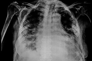 Chest X-Ray of a male patient with right pleural effusion and pneumonia