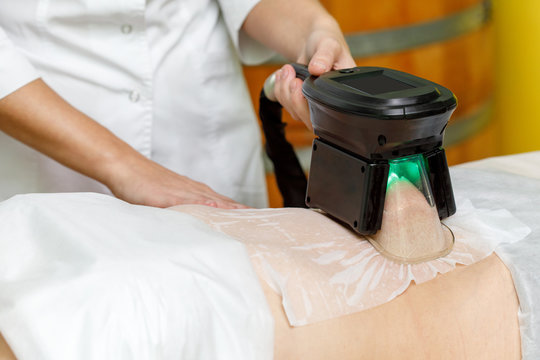 Cryolipolysis fat freezing treatment. Weight loss and slimming procedure