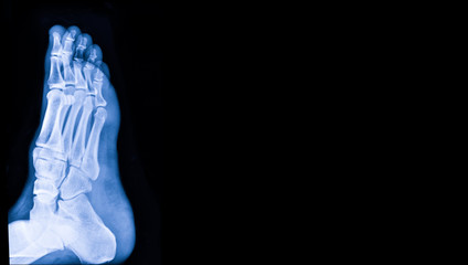 X-ray image of foot with copy space. Medical and health care concept.