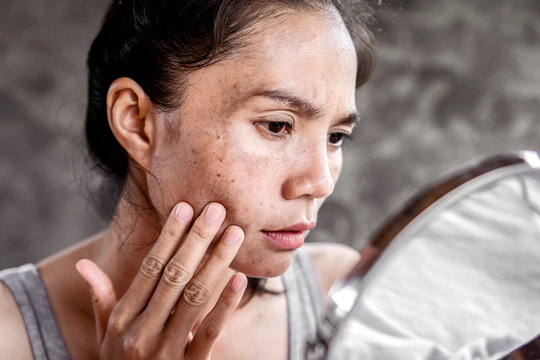 sad Asian woman having skin problem checking her face with dark spot, freckle from uv light in mirror