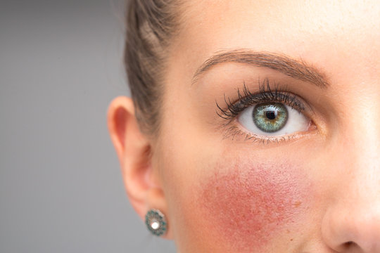 Red flushing cheeks are seen closeup, in the face of a stunning thirty something caucasian girl, permanent redness and small visible blood vessels, symptoms of rosacea with room for copy.