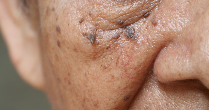 Close up skin tags on wrinkles skin of Asian woman face
