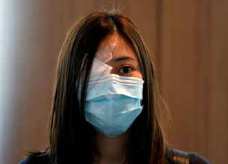 A medical student covers her eye with a patch as she participates in a human chain to protest against the police brutality at the Faculty of Medicine in The University of Hong Kong