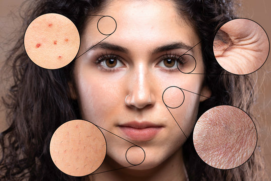 A close up portrait of a beautiful young caucasian girl. Magnified circles show problem areas of the skin causing stress and worry in millennials.