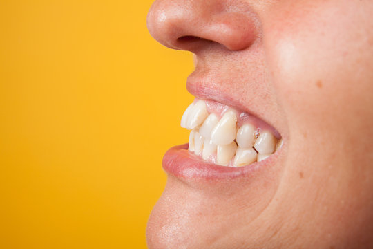 white smile with curvature tooth of young woman on background in studio
