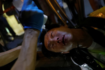 A man gets first aid near Mong Kok police station in Hong Kong
