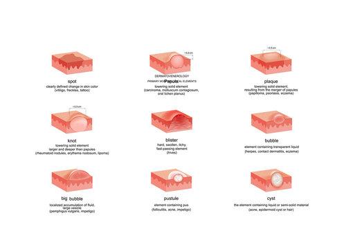 dermatological elements in various diseases