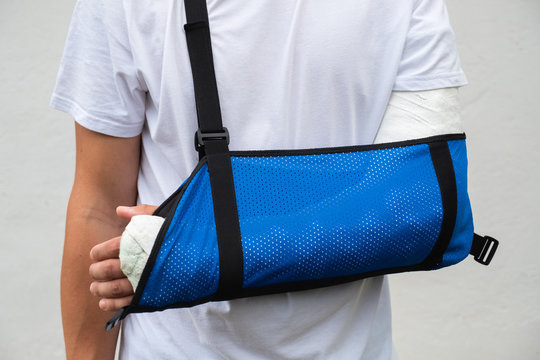 Man with broken arm wrapped medical cast plaster and blue bandage. Fiberglass cast covering the wrist, arm, elbow after sport accident, isolated on white