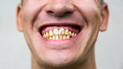 Bad man teeth. Low-quality cavity fillings.