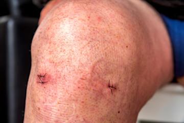Points de suture sur un genou