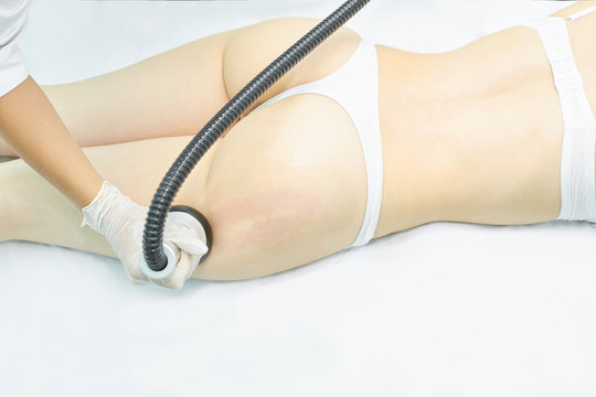 Vacuum massage device. Anti cellulite body correction treatment. Loss weight apparatus. Woman and doctor at medicine salon