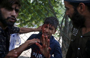A Kashmiri boy reacts after being injured during clashes with Indian security forces after Friday prayers during restrictions in Srinagar