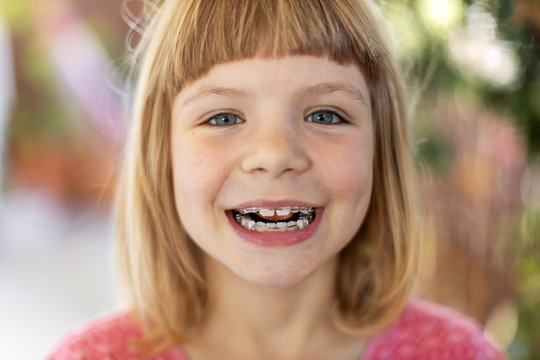 Portrait of smiling little girl with braces