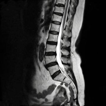 MRI L-s spine or MRI of lambosacral spine or L-S spine on sagittal plane T2 technique for diagnosis spinal cord compression.