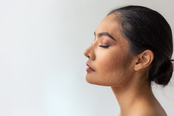 Beautiful asian woman has facial skin problems. Charming beautiful young woman has chronic face skin problems. She has enlarge pore, acne, scars on beautiful face. She get sensitive skin. copy space