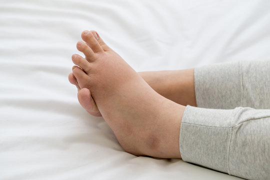 Pregnant women with swelling feet, pain foot and lying on bed in the room. Swollen feet and fetal poisoning or toxicity concept