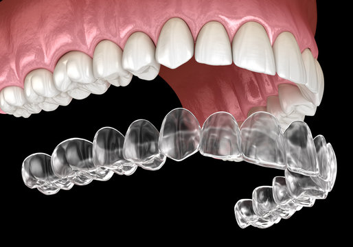 Invisalign braces or invisible retainer. Medically accurate dental 3D illustration