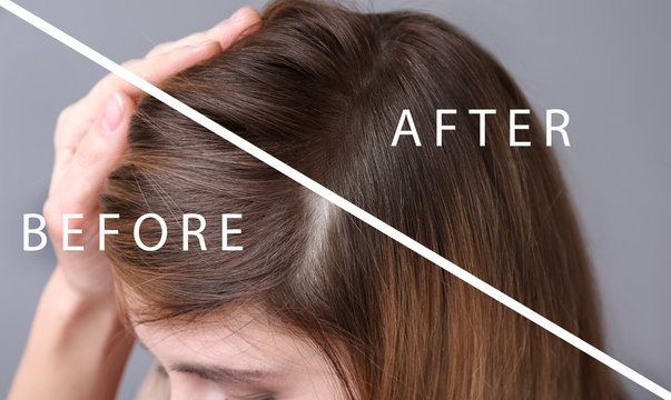 Woman before and after hair loss treatment on grey background