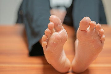 on a pair of feet the skin detaches due to eczema