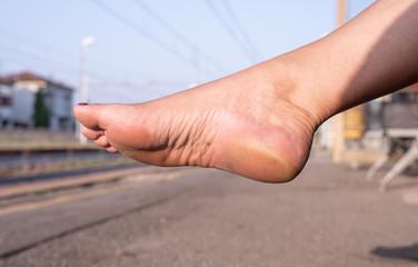 Woman waits in bare dirty feet