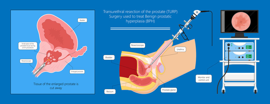 Transurethral resection of the prostate stricture urine bladder digital rectal exam specific antigen Gleason score biopsies Prostatitis test blood ultrasonography Radical Prostatectomy