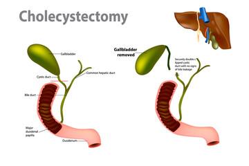 Gallbladder Removal Surgery (Laparoscopic cholecystectomy)