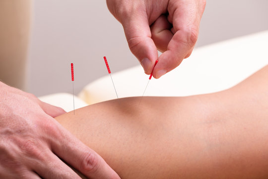 Therapist Giving Acupuncture Treatment On Woman's Knee