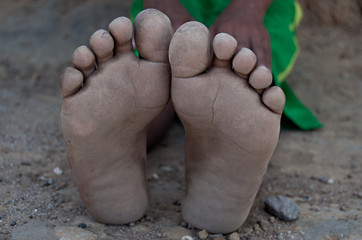 Barefoot children in dirt and sadness