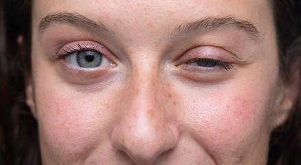 close up on blue eyes girl face with one half closed eye, Myasthenia gravis (MG) disease