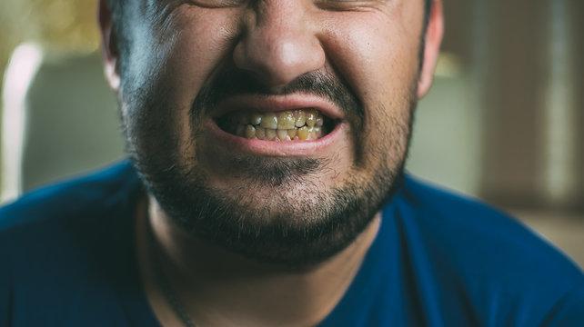 Men with bad teeth