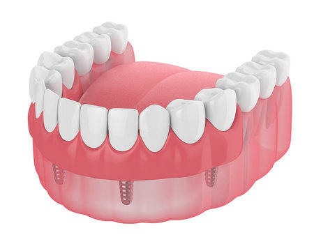 3d render of implant partial denture