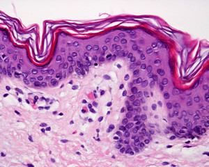 Thin skin. Epidermis
