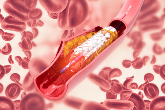 Stent angioplasty on scientific background