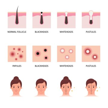 Acne formation and types vector illustration