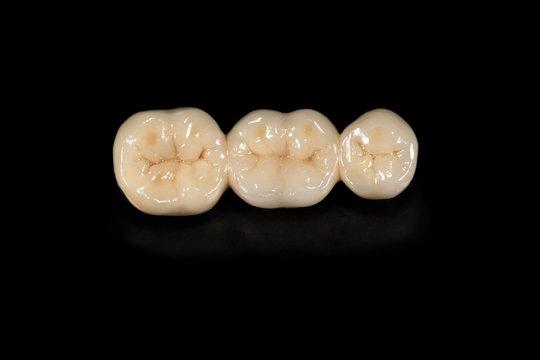 Ceramic tooth crowns and metal pins close-up macro. Orthopedic dentistry restoration of decayed teeth