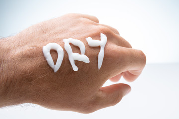 Dry Text With Lotion On Man's Hand