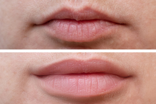 Female lips before and after augmentation, the result of using hyaluronic filler