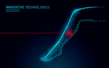 3D woman leg endovenous laser operation concept. Medical surgery veins varicose treatment female foot. Cosmetic hair laser depilation healthy massage salon care vector illustration