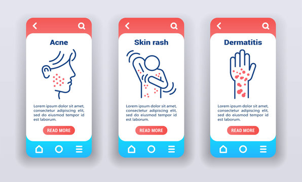 Dermatological diseases on mobile app onboarding screens. UI UX GUI template.