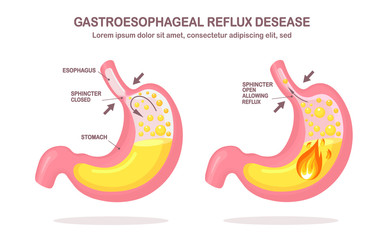 Human stomach. Gastroesophageal reflux disease. GERD, heartburn, gastric infographic. Acid moving up into the esophagus. Vector flat design