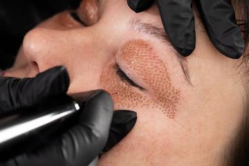 Women eyelid lifting, fibroblast procedure.