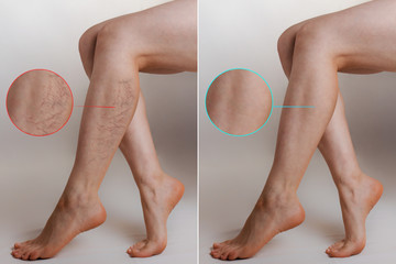 Medicine and health. The concept of female varicose veins. Female legs with vascular stars on the legs, with an enlarged picture. Before and after