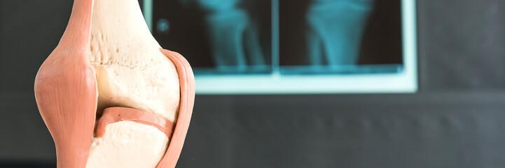 knieprobleme mit Röntgenbild