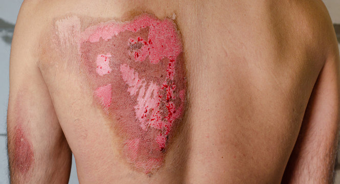 Second-degree burns on male back caused by heat. Medical concept.