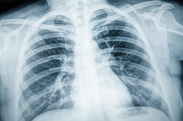 Radiographic image of the respiratory tract, lungs, ribs