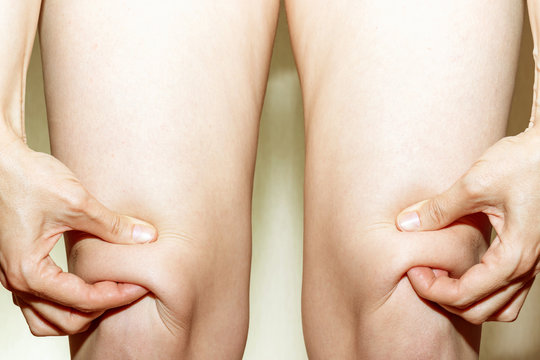 Knee of women worry about fat skin and holdin it by hands on light background