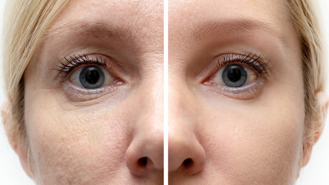 Woman face with wrinkles and age change before and after treatment - the result of rejuvenating cosmetological procedures of biorevitalization, botox face lifting and pigment spots removal